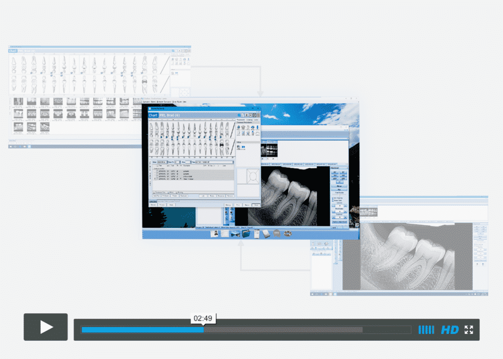 dental software video